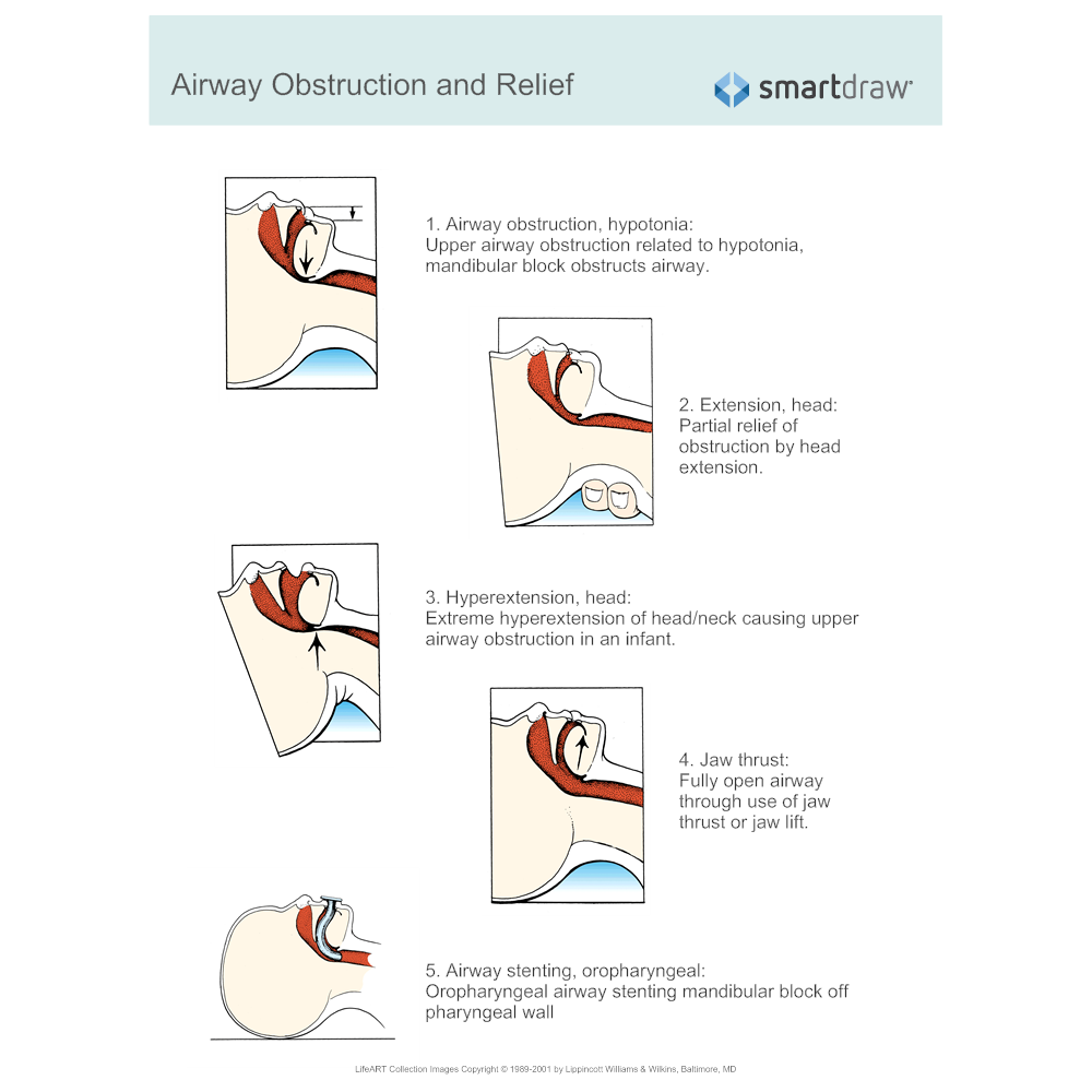 Example Image: Airway Obstruction and Relief