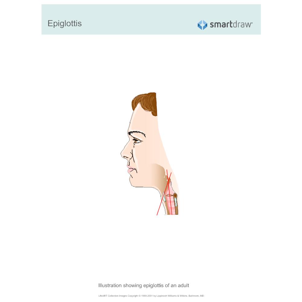 Example Image: Epiglottis