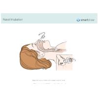 Nasal Intubation