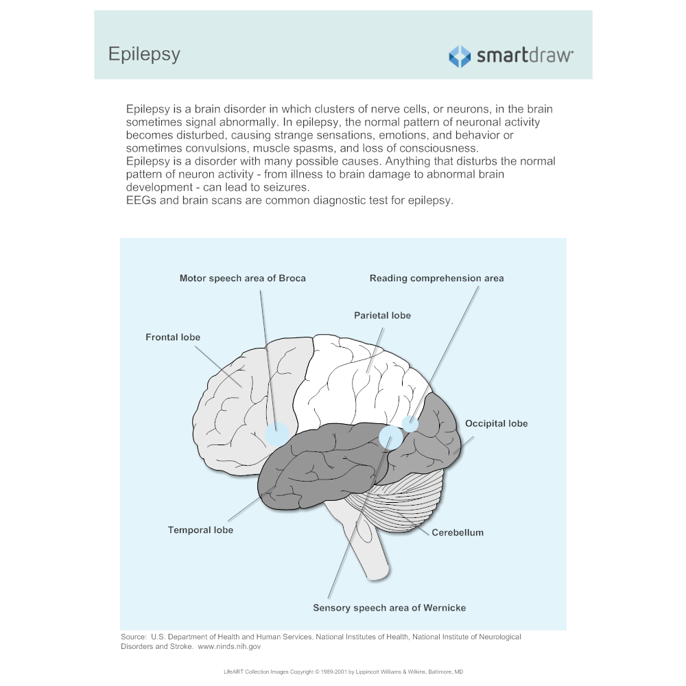 Example Image: Epilepsy