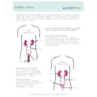 Bladder Cancer