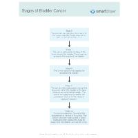 Stages of Bladder Cancer