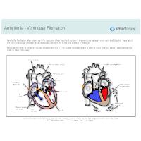 Arrhythmia - Ventricular Fibrillation