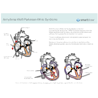 Arrhythmia - Wolff-Parkinson-White Syndrome