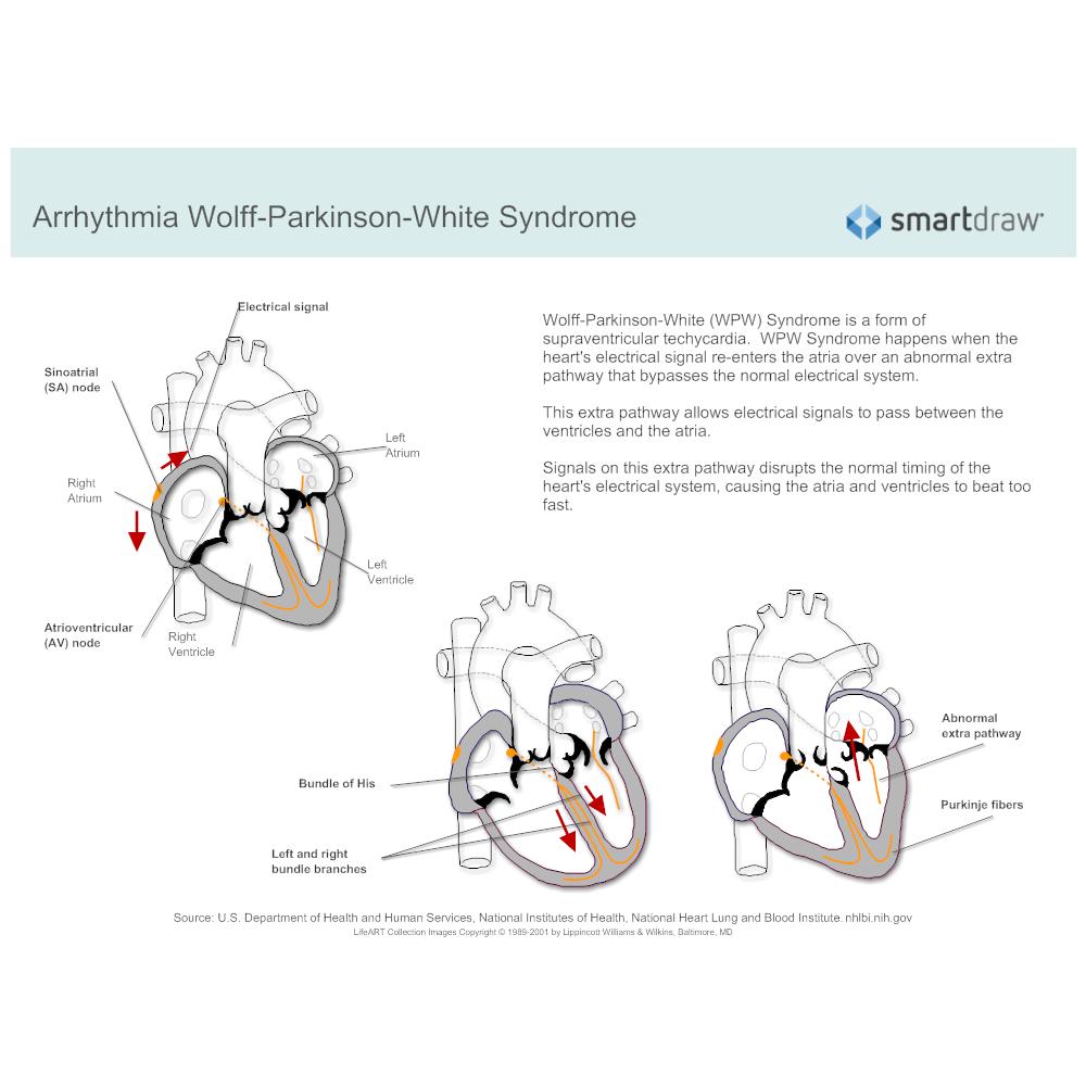 Example Image: Arrhythmia - Wolff-Parkinson-White Syndrome