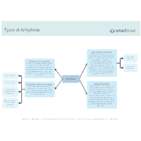 Types of Arrhythmia