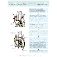Cardiac Pacemaker