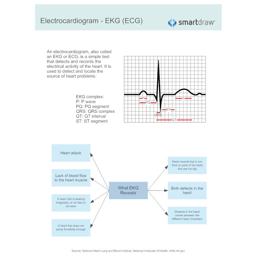 Example Image: Electrocardiogram