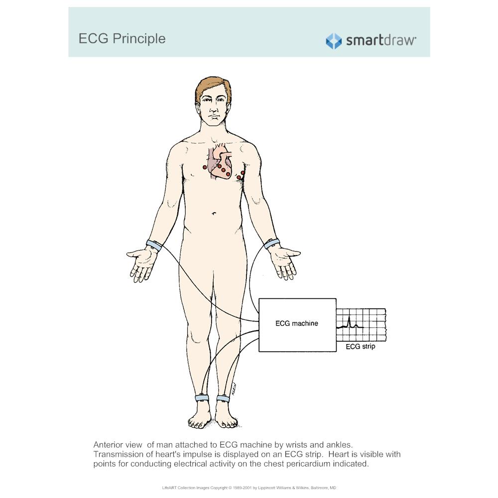Example Image: ECG Principle