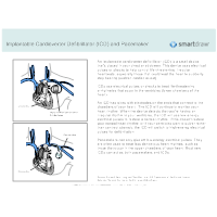 Implantable Cardioverter Defibrillator and Pacemaker