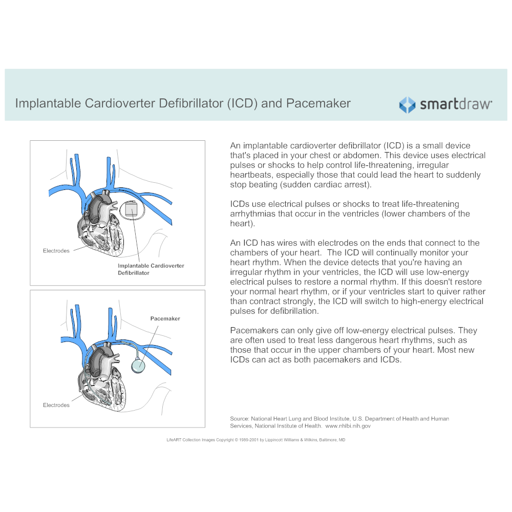 Example Image: Implantable Cardioverter Defibrillator and Pacemaker