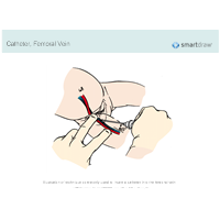 Catheter - Femoral Vein