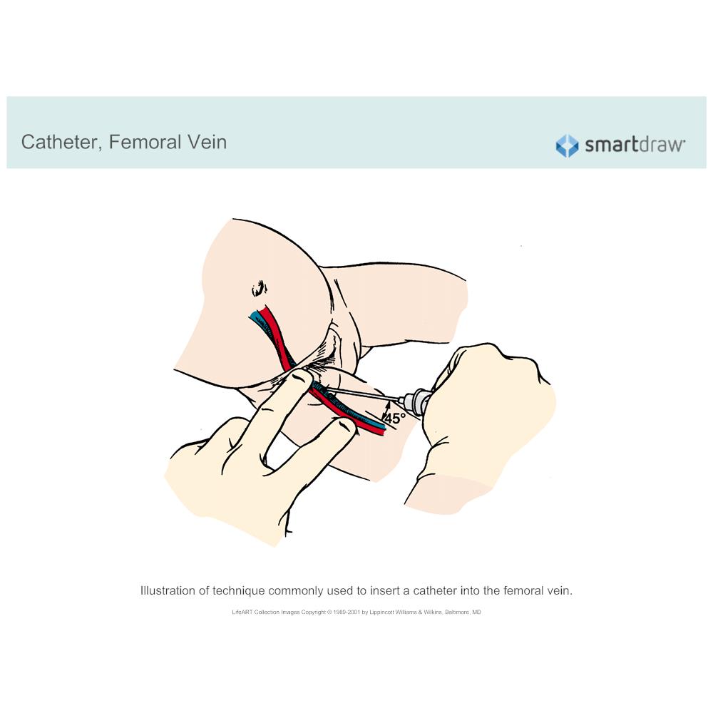 Example Image: Catheter - Femoral Vein