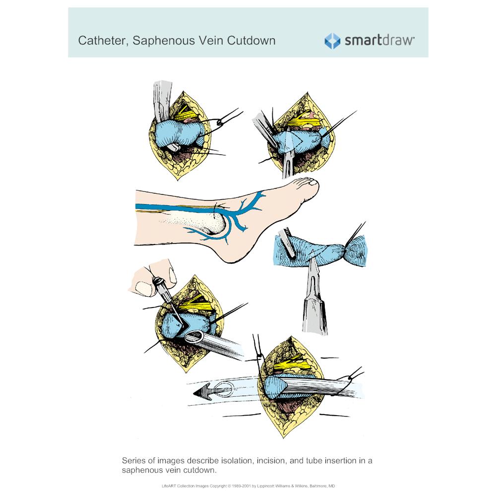 Example Image: Catheter - Saphenous Vein Cutdown
