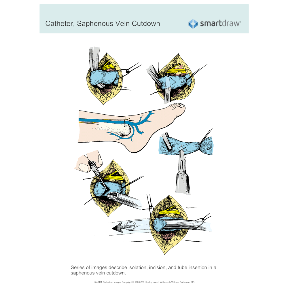 Example Image: Catheter - Saphenous Vein Cutdown