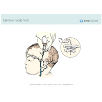Catheter - Scalp Vein