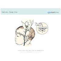 Catheter - Scalp Vein