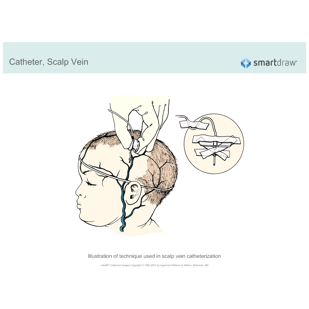 Example Image: Catheter - Scalp Vein