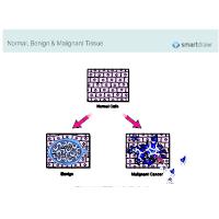 Normal, Benign & Malignant Tissue