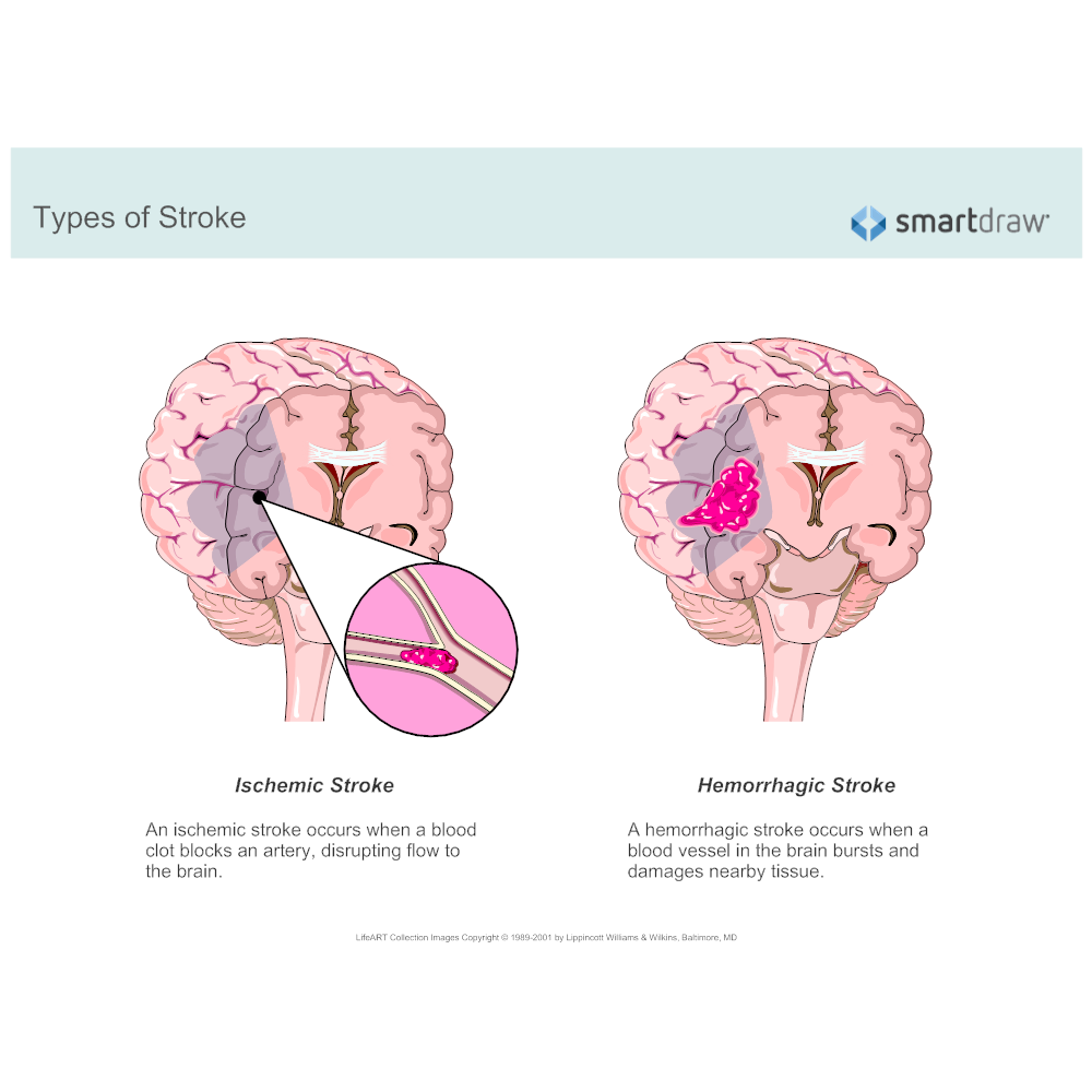 Example Image: Types of Stroke