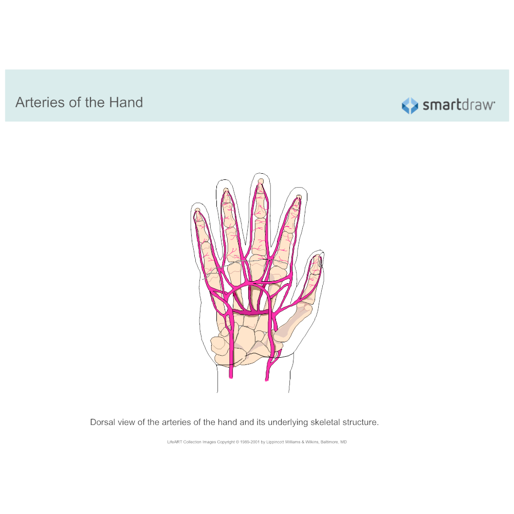 Example Image: Arteries of the Hand