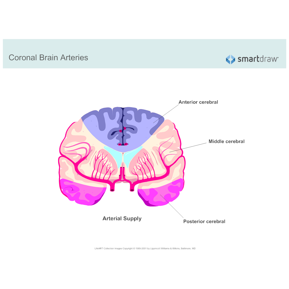 Example Image: Coronal Brain Arteries
