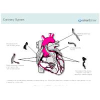 Coronary Bypass