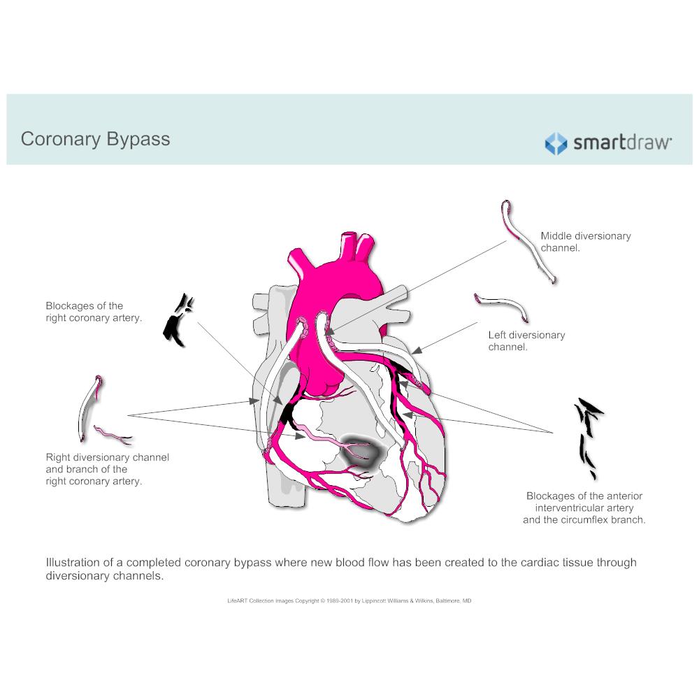 Example Image: Coronary Bypass