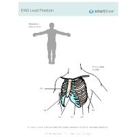 EKG Lead Position