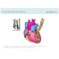 Internal Mammary Artery Bypass