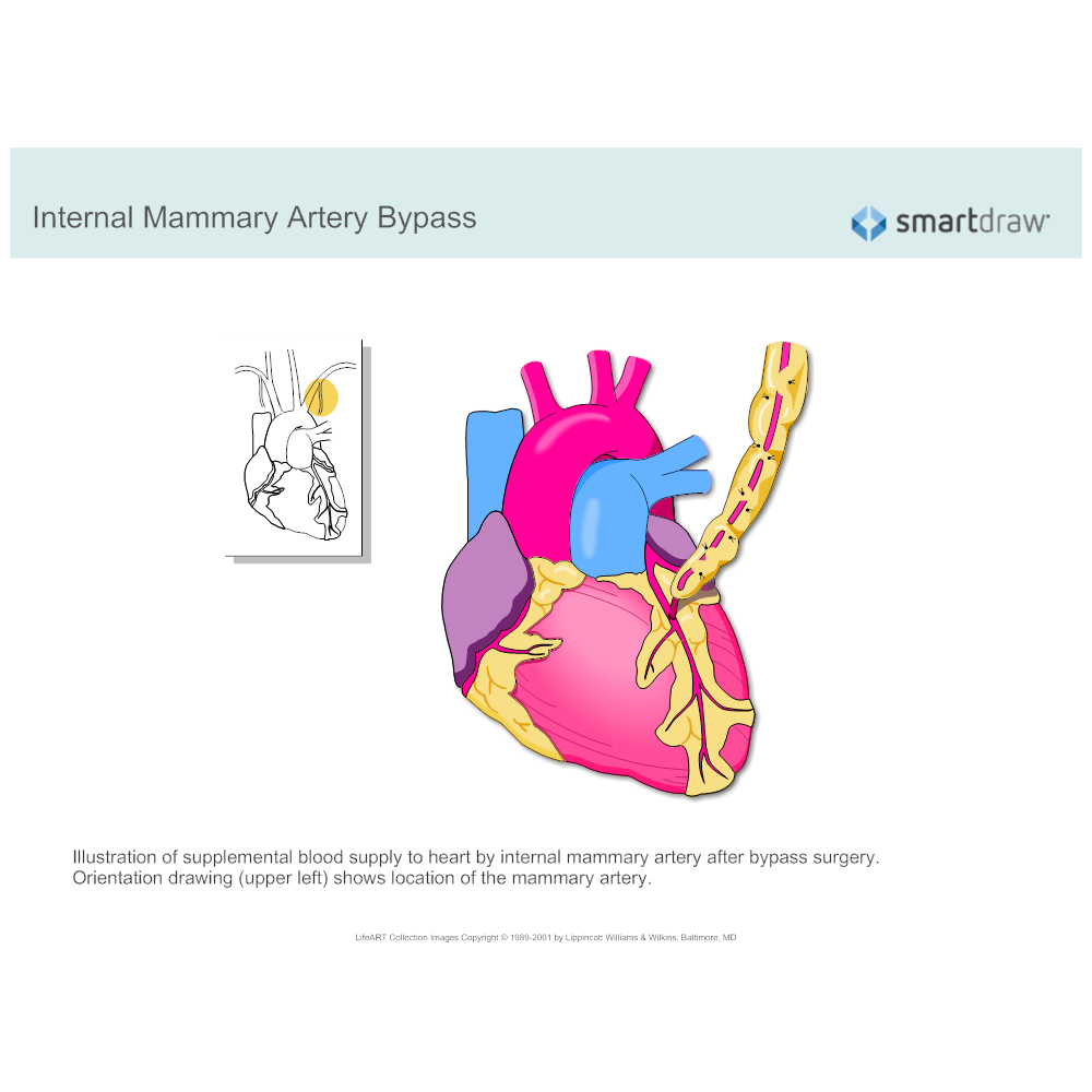 Example Image: Internal Mammary Artery Bypass