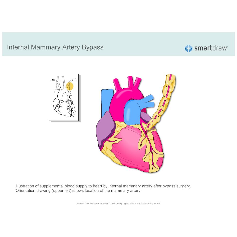 Example Image: Internal Mammary Artery Bypass