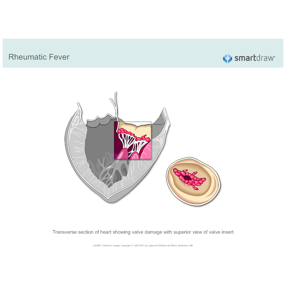 Example Image: Heart Valve Damage - Rheumatic Fever