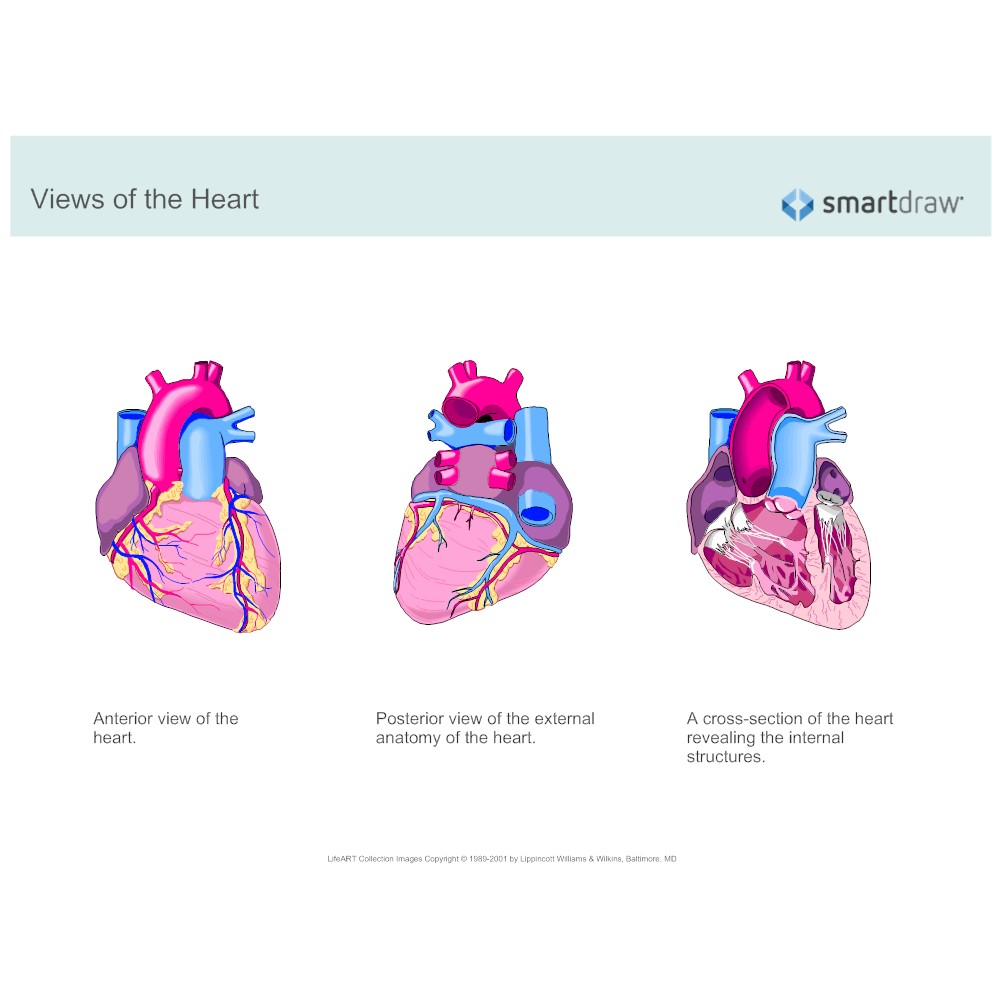 Example Image: Views of the Heart