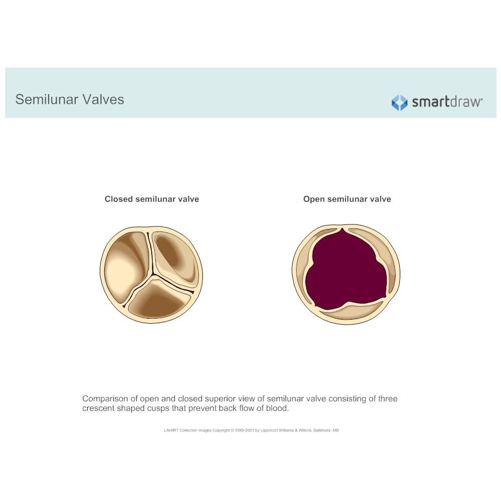 Example Image: Semilunar Valves