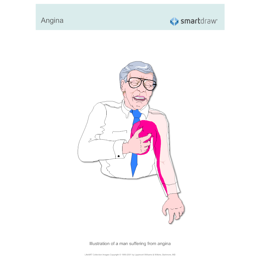 Example Image: Man Suffering from  Angina