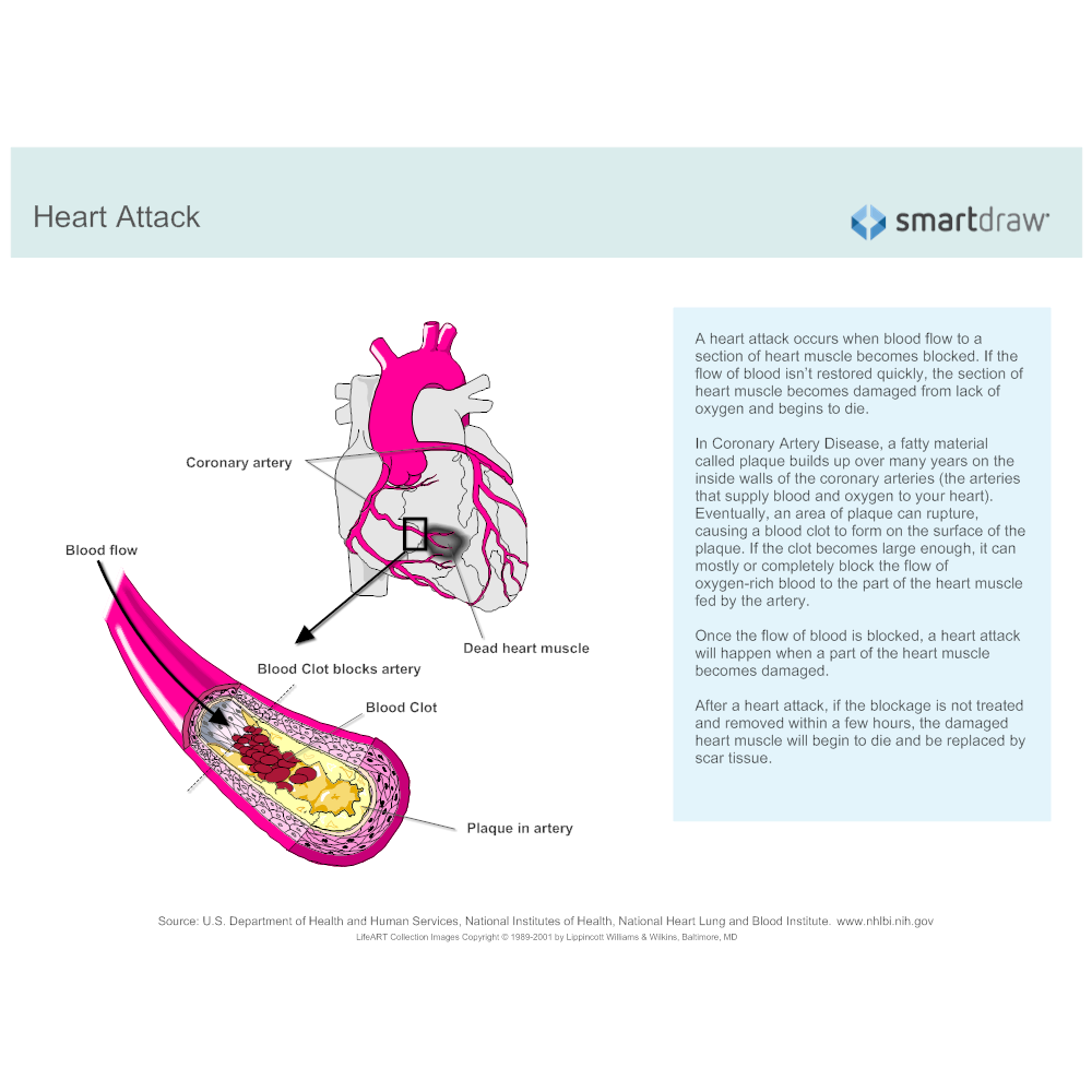Example Image: Heart Attack
