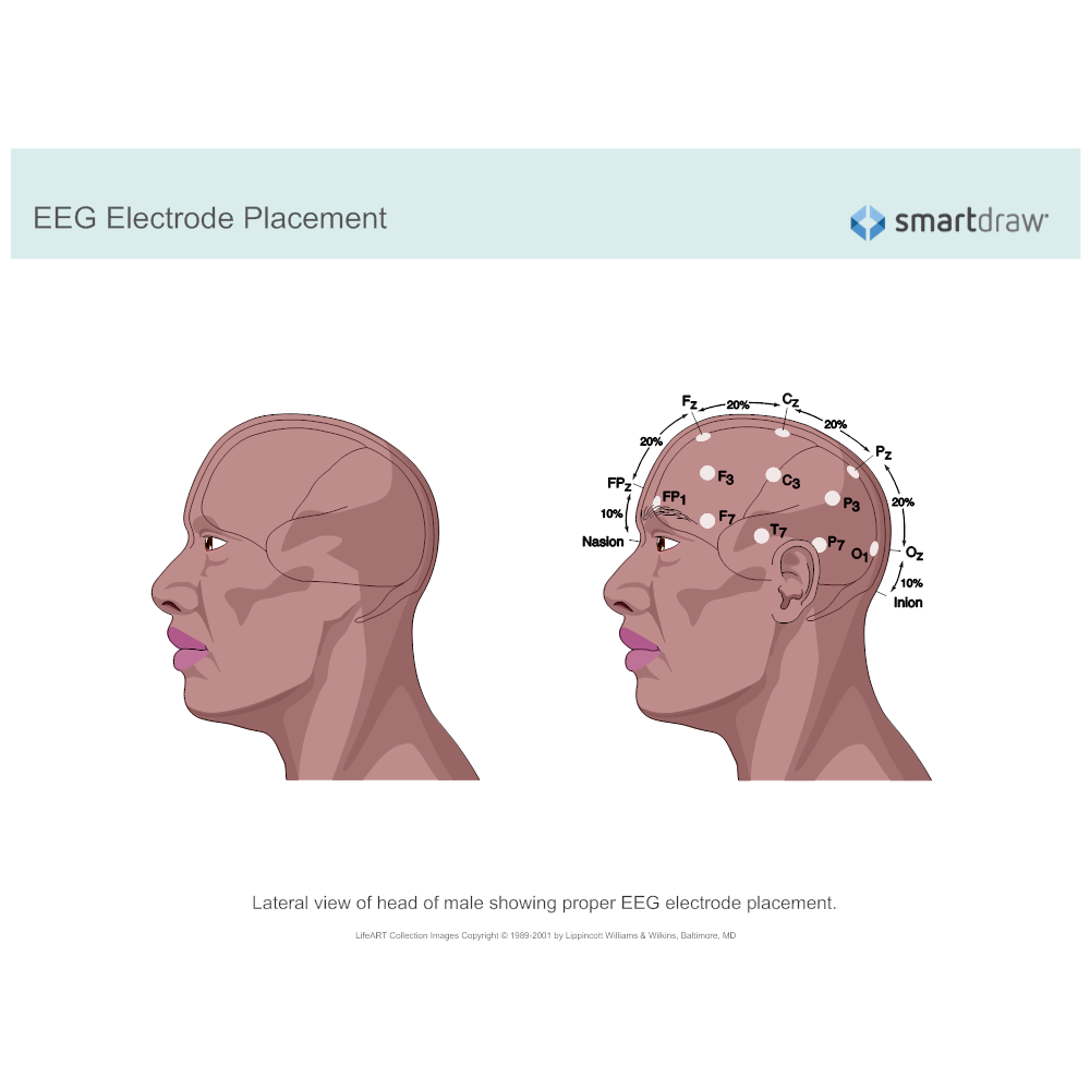Example Image: EEG Electrode Placement