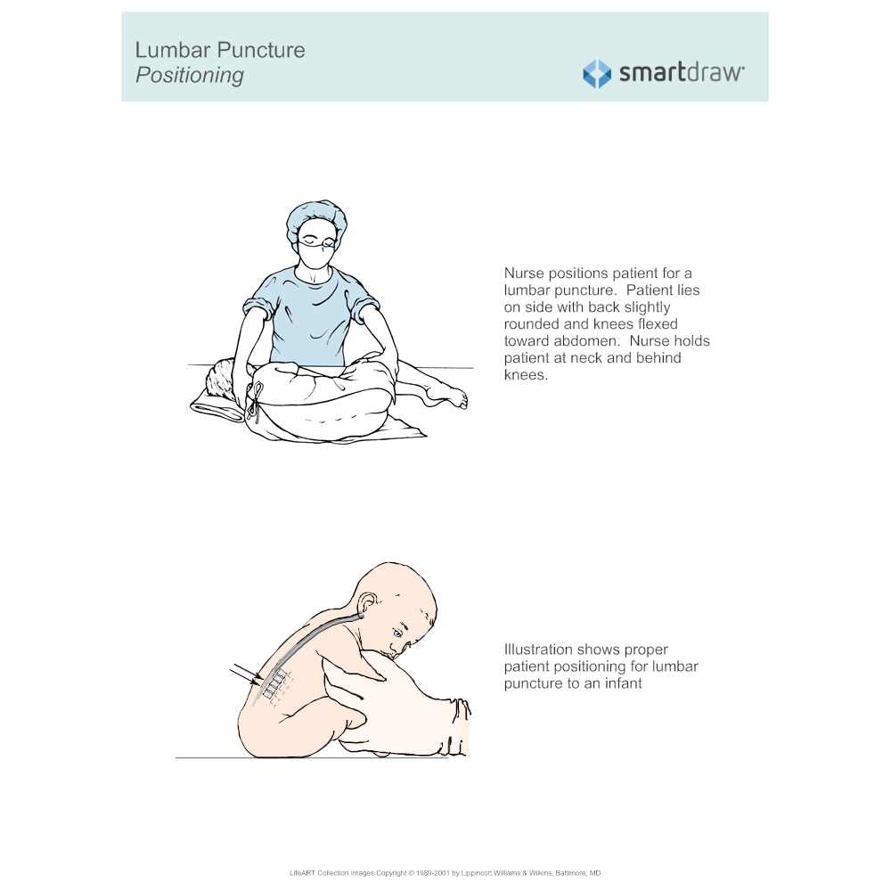 Example Image: Lumbar Puncture - Positioning