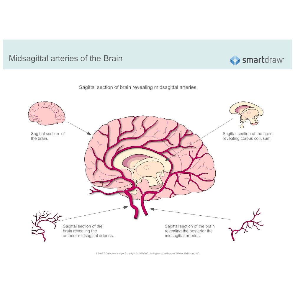 Example Image: Midsagittal Arteries of the Brain