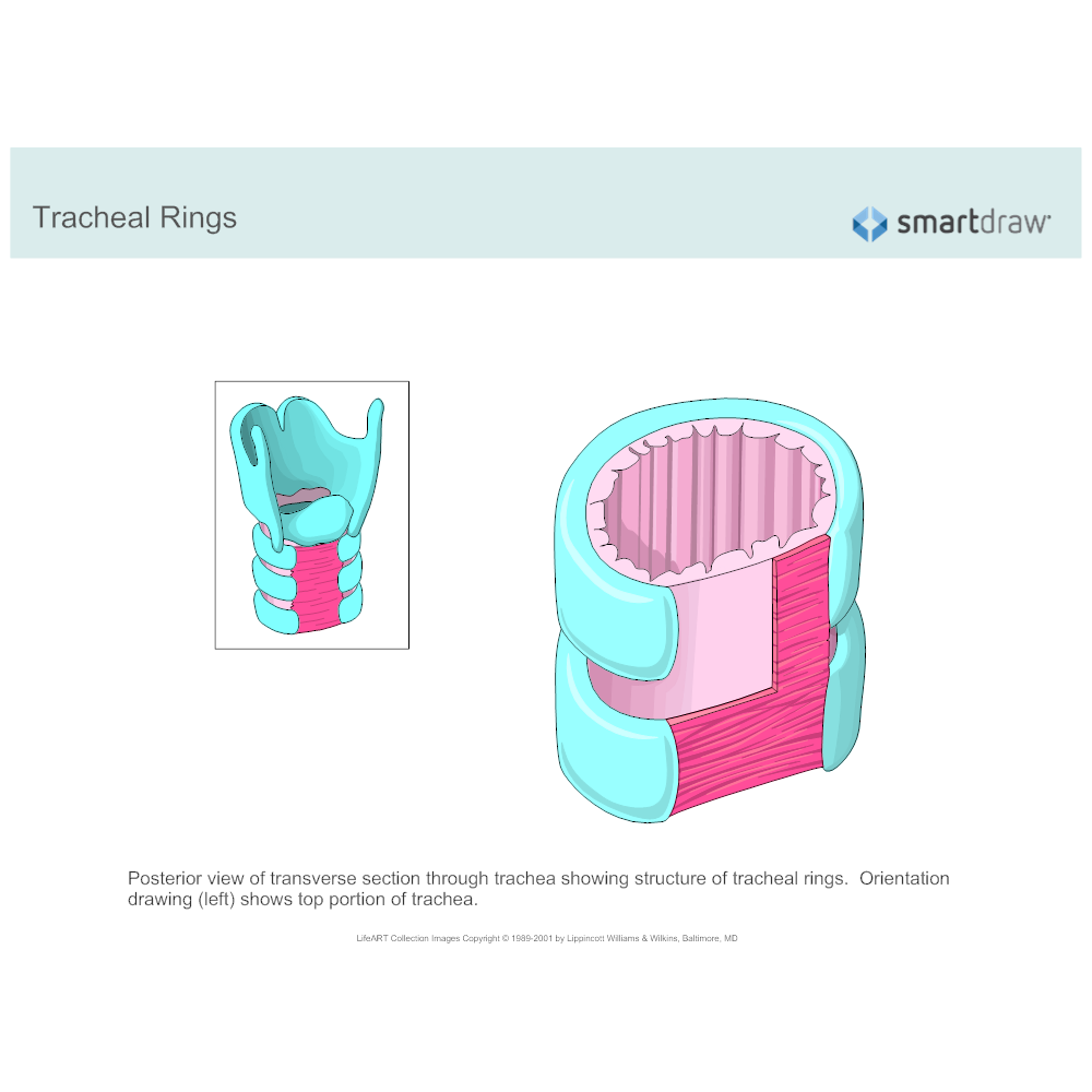 Example Image: Tracheal Rings