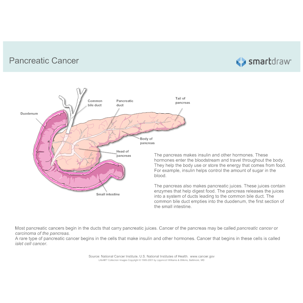 Example Image: Pancreatic Cancer