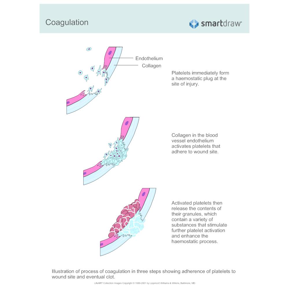 Example Image: Coagulation