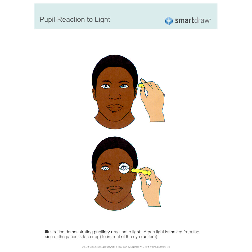 Example Image: Pupil Reaction to Light