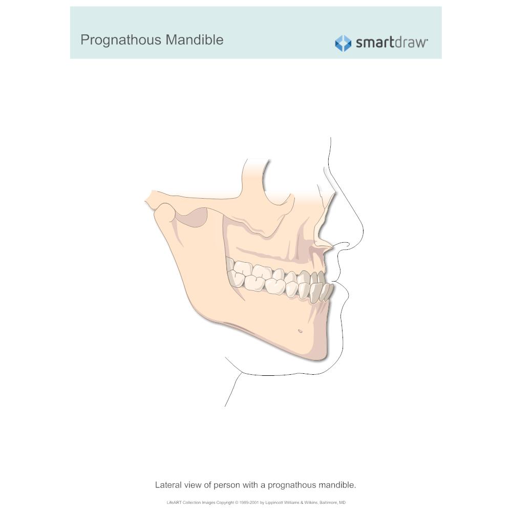 Example Image: Prognathous Mandible