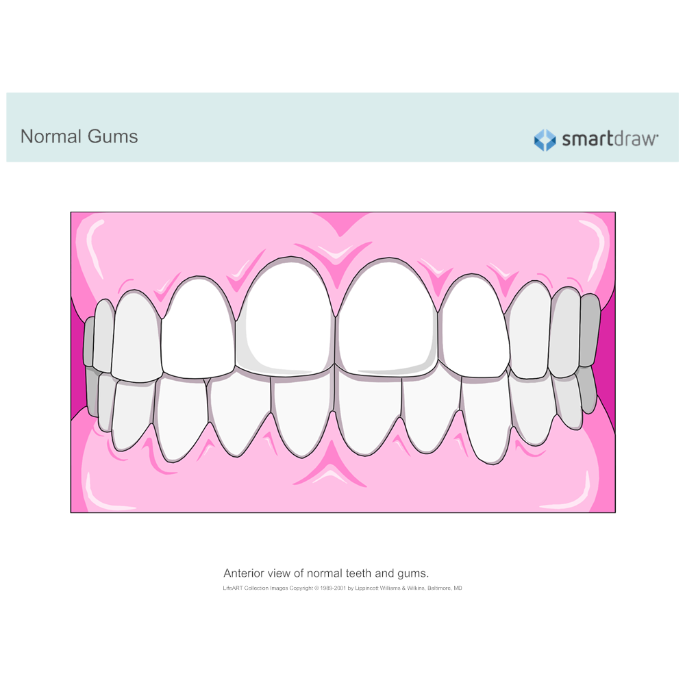 Example Image: Normal Gums