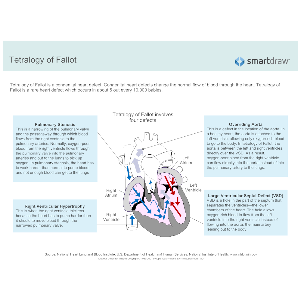 Example Image: Tetralogy of Fallot