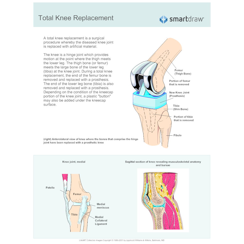 Example Image: Knee Replacement