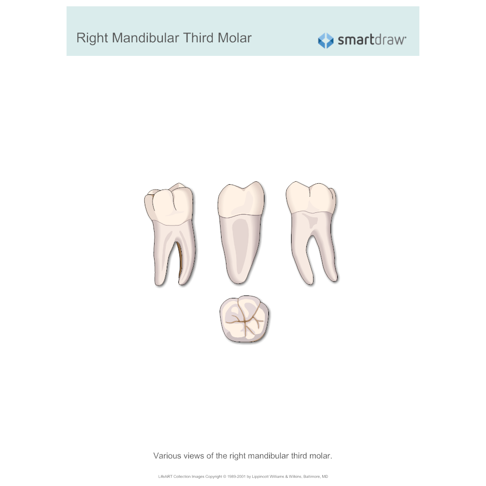 Example Image: Right Mandibular Third Molar