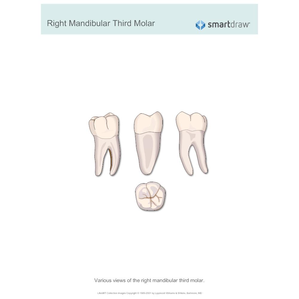 Example Image: Right Mandibular Third Molar